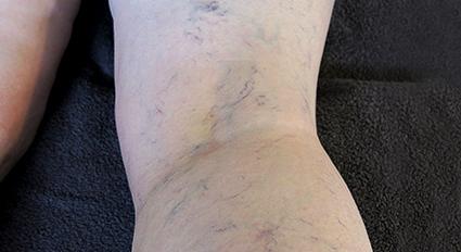 Aethoxysklerol estetiska kliniken Injektionsbehandling av ytliga ådernät på benen ådernät bristningar