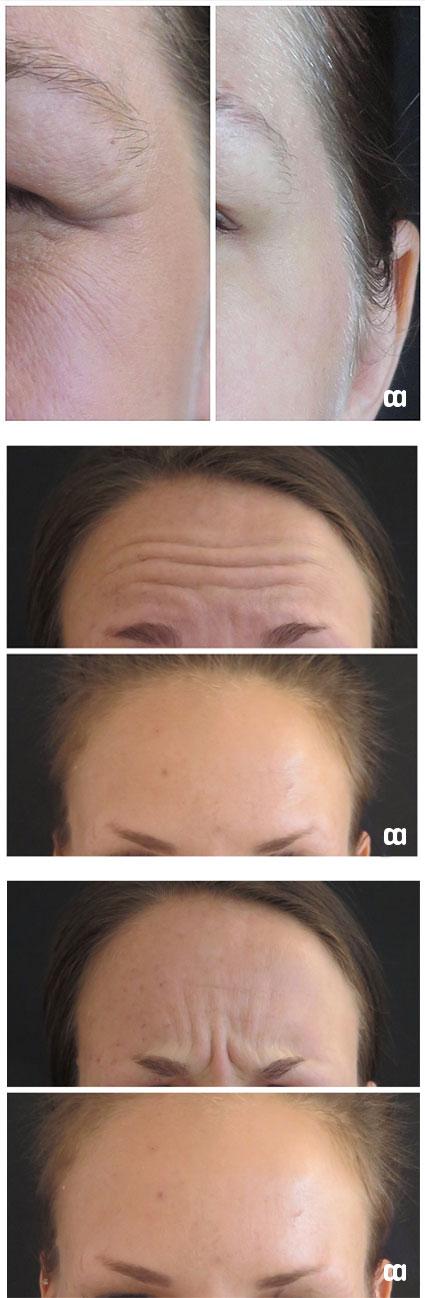 botox före efter behandling bekymmersrynka kråksparkar