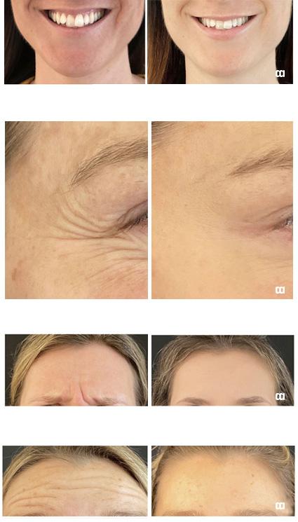botox estetiska kliniken