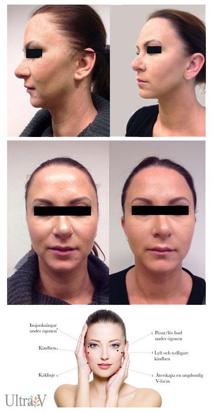 ultra v trådlyft hudföryngring huduppstramning icke kirurgisk