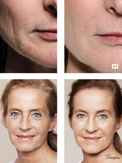 restylane skinbooster före efter kollagen hyaluronsyra återställa fuktbalansen fina linjer